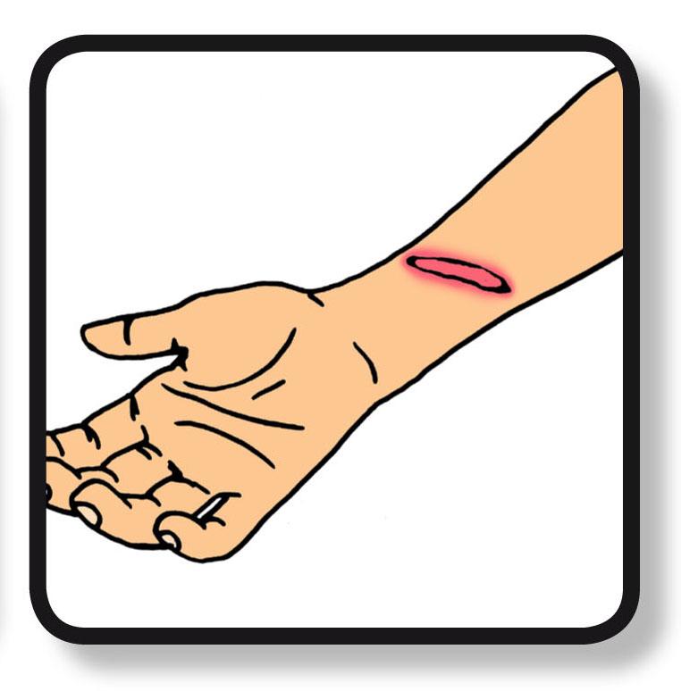 biodermal droge en gevoelige huid